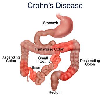 Simptomele bolii Crohn