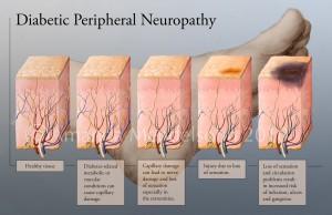 Neuropatia diabetica