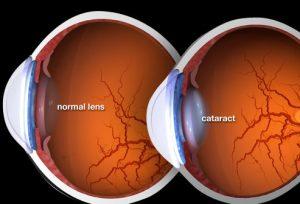 Cataracta in diabet