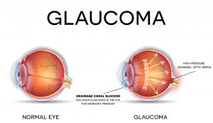 Glaucom in diabet