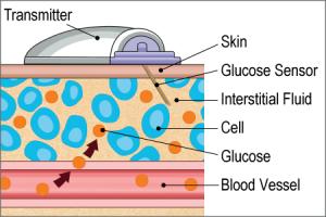 Senzorul de glicemie