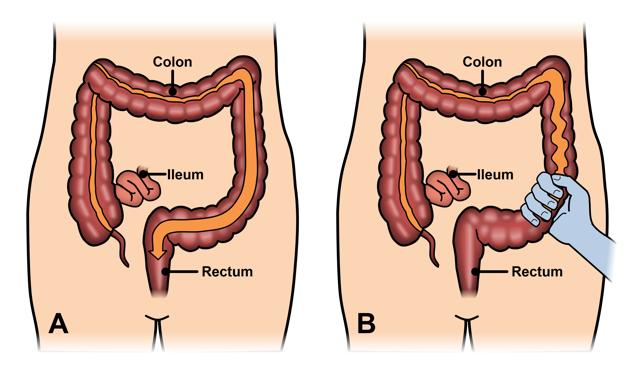 Durerea de colon sau durerea abdominala: cauze si tratament