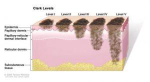 Ce este melanomul?