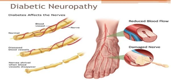 Neuropatia diabetica - mecanisme de producere