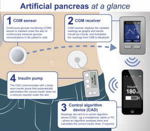Pancreasul artificial