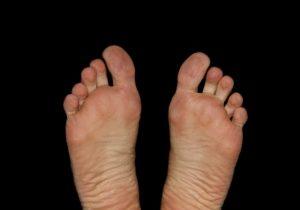 Picioarele in diabet