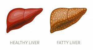 Steato-hepatita non-alcoolica