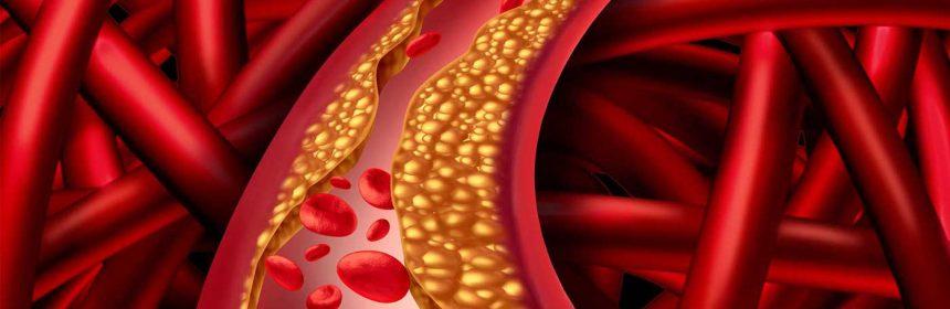 Hipercolesterolemia familiala