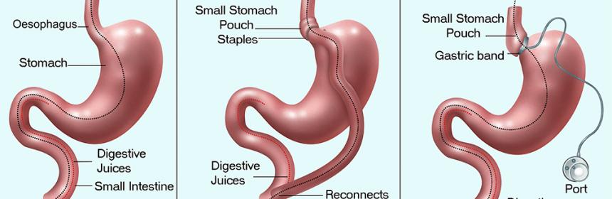 Tratamentul chirurgical al obezitatii si tipuri de interventii