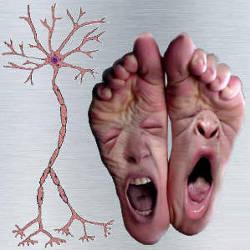Neuropatia diabetica distala