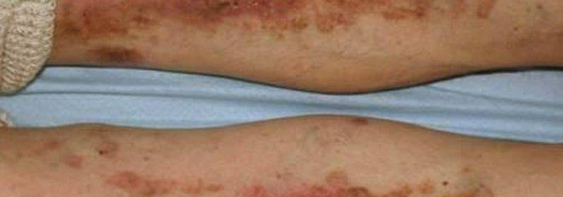 Dermatita diabetica