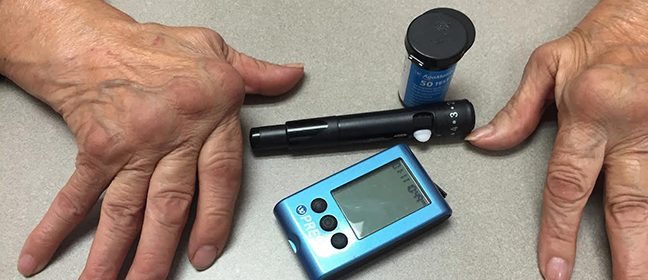 Artrita reumatoida si diabetul