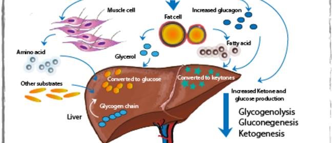 Cetoacidoza diabetica - complicatiile tratamentului