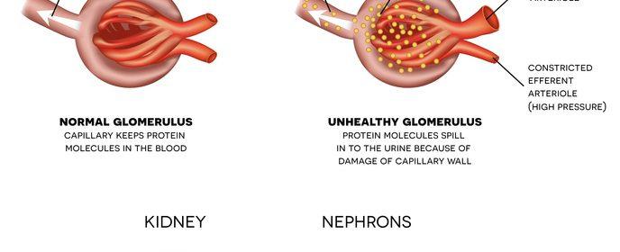 Nefropatia diabetica in diabetul zaharat tip 1 si tip 2 - caracterizare morfopatologica