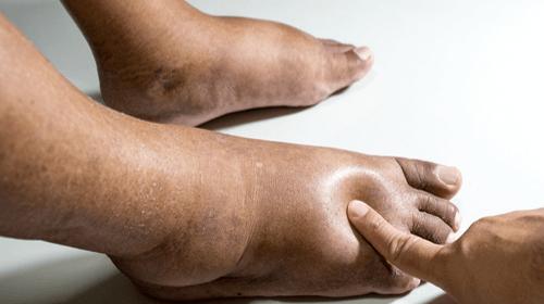 Scapa de picioarele umflate