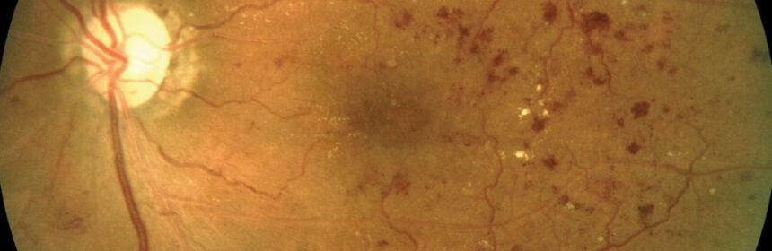 Cum te aperi de retinopatia diabetica?